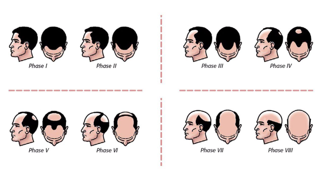 Evolutia alopeciei - LookClinic